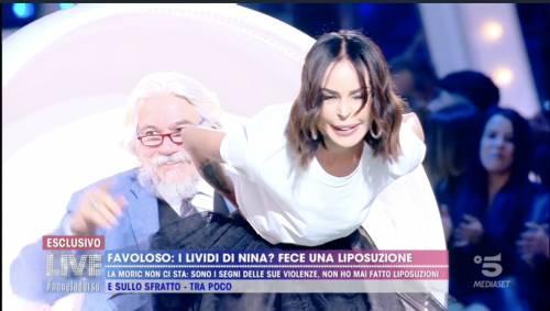 Live Non è la d'Urso, Nina Moric contro tutti. I lividi sono compatibili con una liposuzione