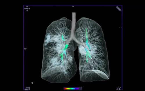 """Gli esperti e le """"foto"""" di Covid: """"È simile a tumore ai polmoni"""""""