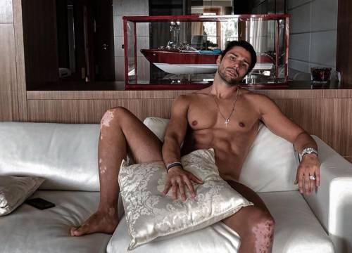 Luca Onestini sfida la censura e posa nudo con i segni della psoriasi
