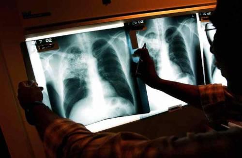 Segni di polmonite interstiziale: così le Rx scovano gli asintomatici