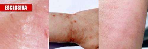 """Ecco la verità sul coronavirus: """"Pelle esposta nel 45% dei casi"""""""