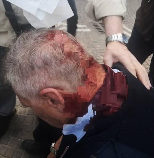 Il vigile rimprovera ragazzini in strada, loro gli spaccano la testa
