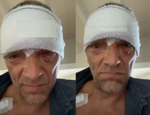 Paura per Vincent Cassel: un brutto incidente gli provoca un trauma cranico