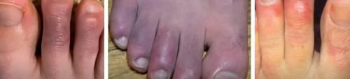 """Il """"rossore"""" nei piedi dei malati: cosa si scatena nei vasi"""