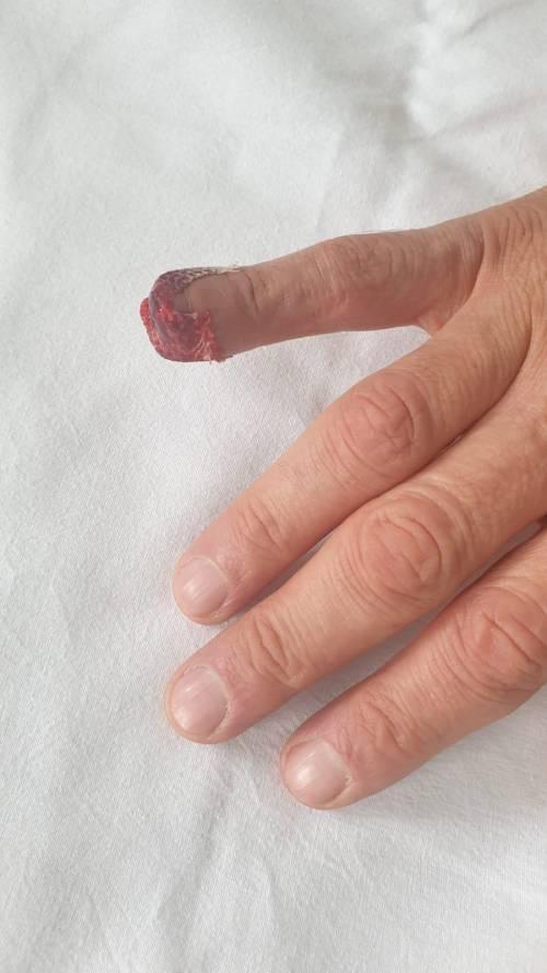 Il dito dell'agente aggredito a morsi dal detenuto a Rebibbia 2