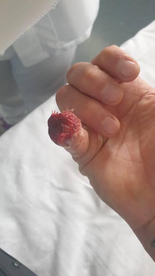 Il dito dell'agente aggredito a morsi dal detenuto a Rebibbia 5