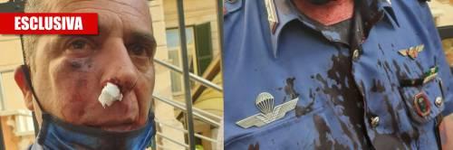 L'immigrato gli sferra due pugni e spacca la faccia al militare