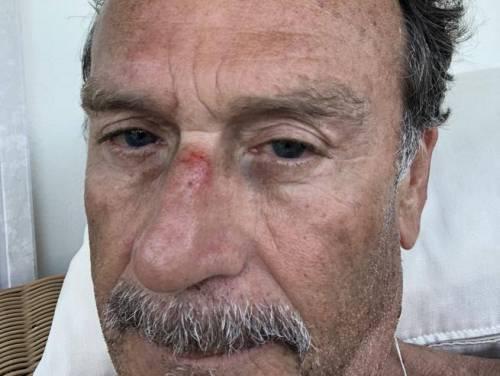 Cellino aggredito da due malviventi: ''Volevano derubarmi, li ho presi a calci...''