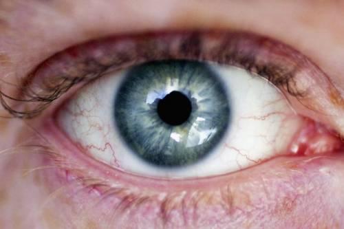 Usa, giovane fissa un puntatore laser per alcuni secondi: perde parte della retina