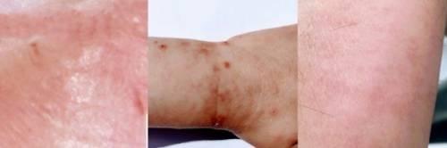 I 6 segni sulla nostra pelle che annunciano il contagio da Covid