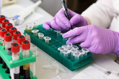 Leucemia mieloide acuta, identificato un nuovo bersaglio genetico