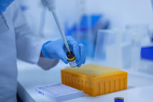 Leucemia mieloide acuta, svelato il meccanismo del metabolismo individualizzato
