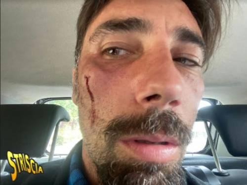 Brumotti aggredito e pestato a Foggia: trauma facciale e prognosi di 30 giorni