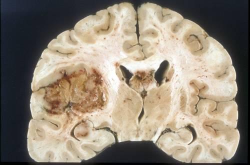 Glioblastoma, nuove speranze per la forma più grave di tumore al cervello