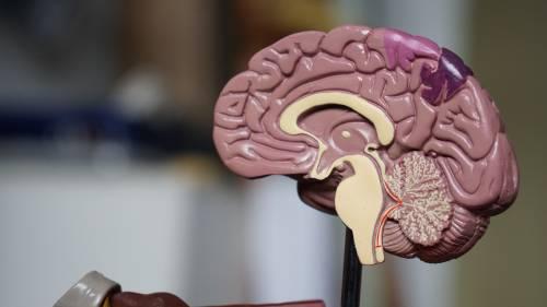 Cervello più piccolo per i criminali recidivi: lo svela la risonanza magnetica