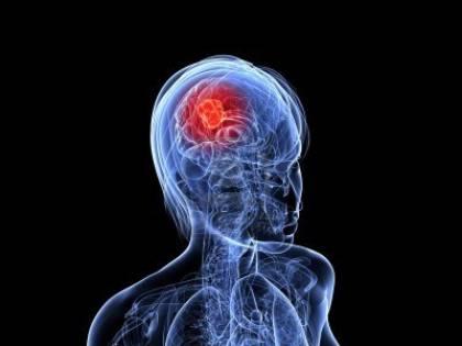 Operata di tumore: trovato un embrione dentro al cervello