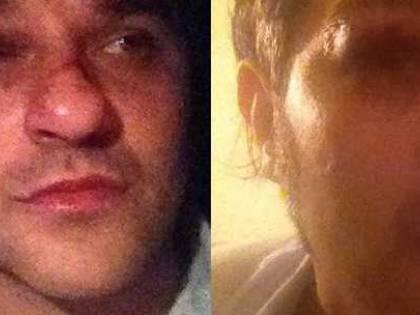 Aggredito l'ex Gf Mauro Marin: usciva da casa di una rumena