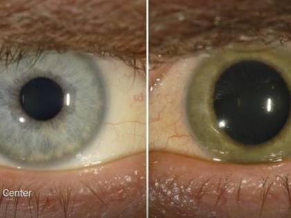 Gli occhi infetti del virus Ebola