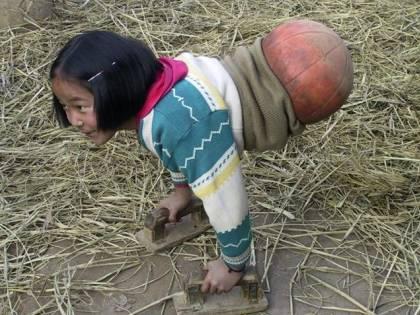 """Qian Hongyan, """"Basketball Girl"""": la bambina con una palla al posto delle gambe è una nuotatrice professionista"""