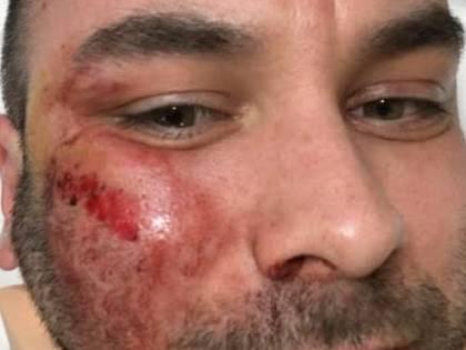 Caccia la rom che gli defeca in casa. Pestato a sangue dai nomadi