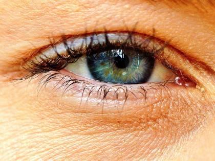 Occhiaie, ecco i rimedi per contrastarle