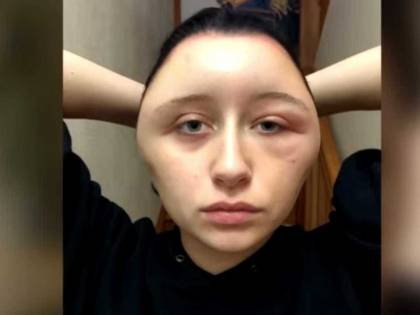 Ha una reazione allergica dopo tintura per capelli: la faccia si gonfia di 63 cm