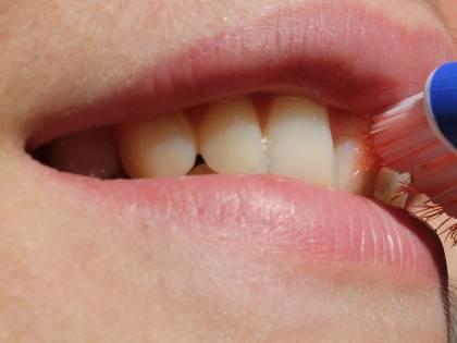 Il legame tra salute orale e morbo di Alzheimer