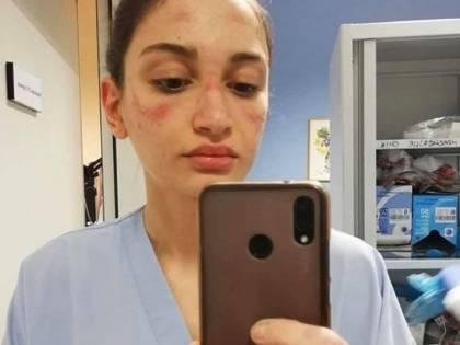 """L'infermiera con il volto segnato dalla mascherina: """"State in casa"""""""