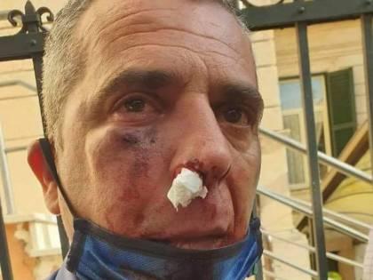 Il migrante che ha spaccato la faccia al militare aveva il reddito di cittadinanza