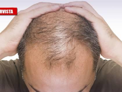 """Il virus e il legame coi capelli: """"Colpisce di più chi non li ha"""""""