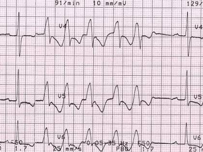 Vi capita di avere la tachicardia? Come riconoscerla e cosa fare