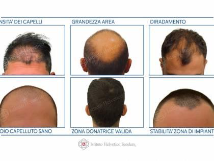 Trapianto di capelli, in Italia è meglio che all'estero?
