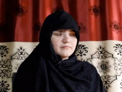 """33enne accecata dai Talebani perché aveva """"deciso di lavorare"""""""