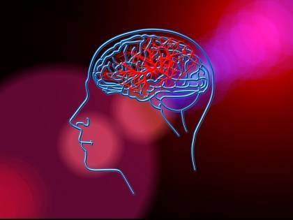 Ictus, una nuova strategia terapeutica potrebbe ridurre i danni