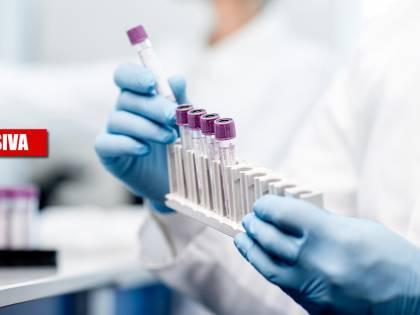 I nanoanticorpi saranno la svolta: ecco la nuova cura anti-Covid