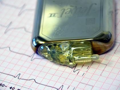 Pacemaker, così smartphone e fitness tracker ne alterano il funzionamento