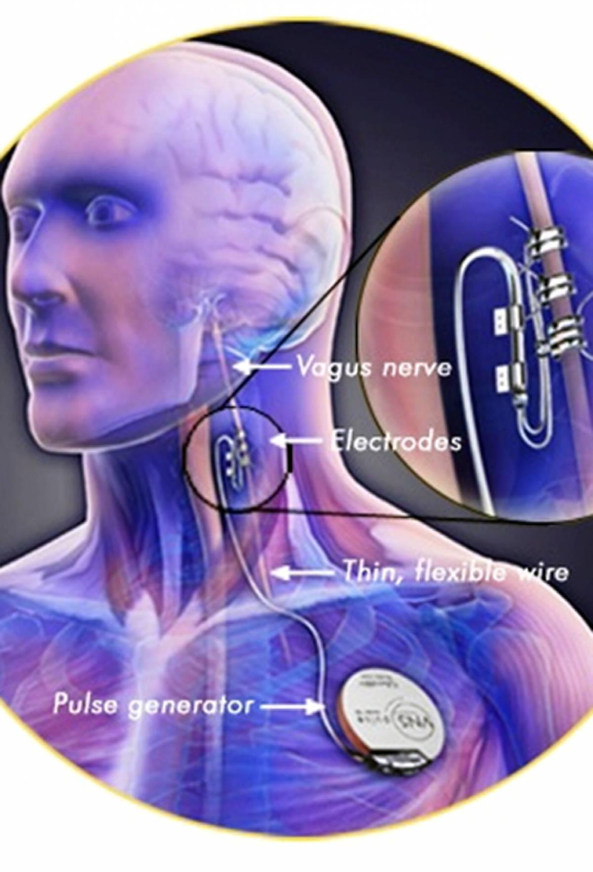 Impiantato il pacemaker anti-depressione