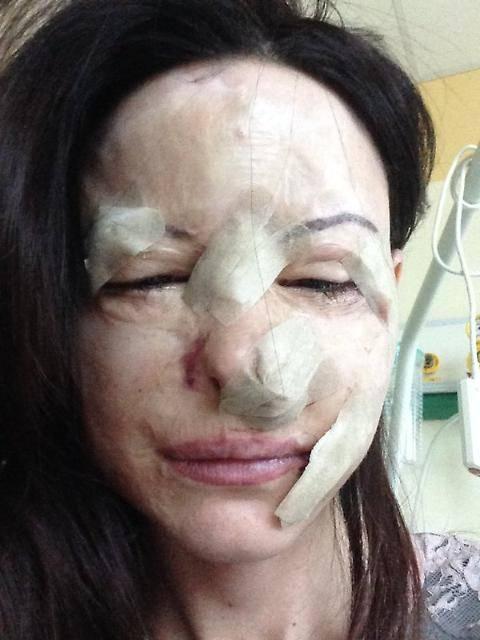Lucia Annibali, su twitter  la foto sfregiata dall'acido