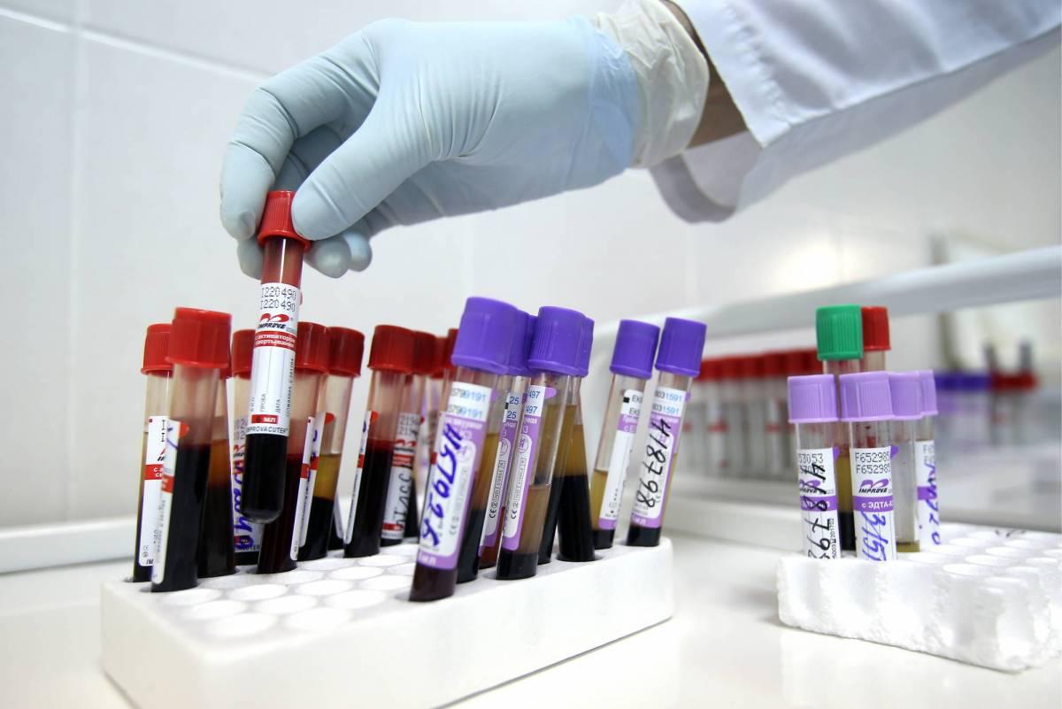 La prevenzione dell'Hiv finanziata con soldi pubblici? Promuove il sesso di gruppo
