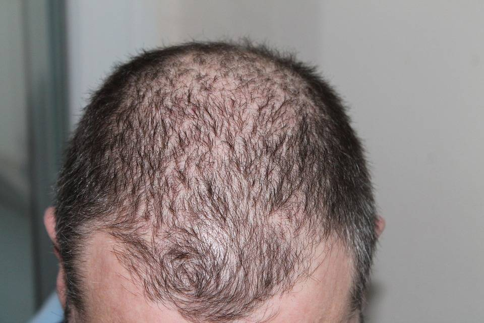 Cura della calvizie: nell'80% dei pazienti i capelli ricrescono
