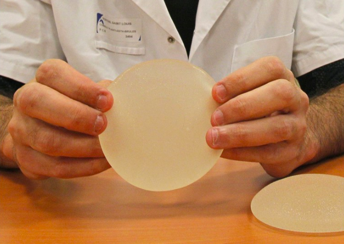 In Italia primo caso di donna morta di tumore per le protesi al seno