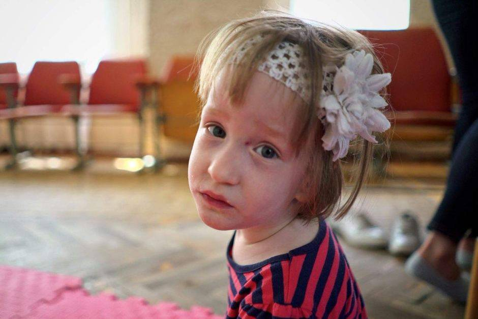 """La figlia nasce con disabilità. I genitori: """"Staccatele la spina"""""""