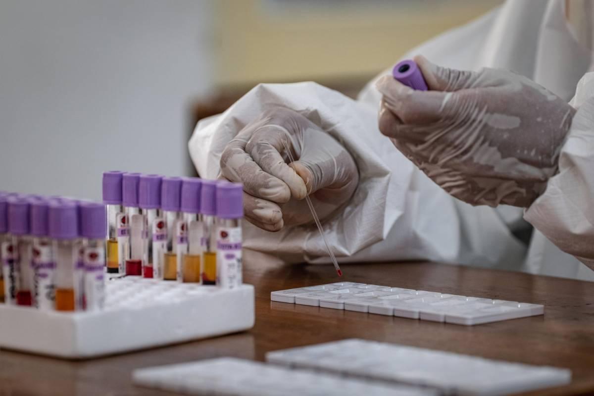 Coronavirus, test sierologici su larga scala: c'è l'okay del governo