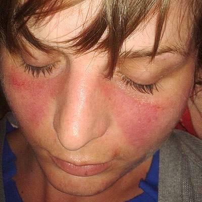 Lupus eritematoso sistemico e coronavirus: troppe fake news