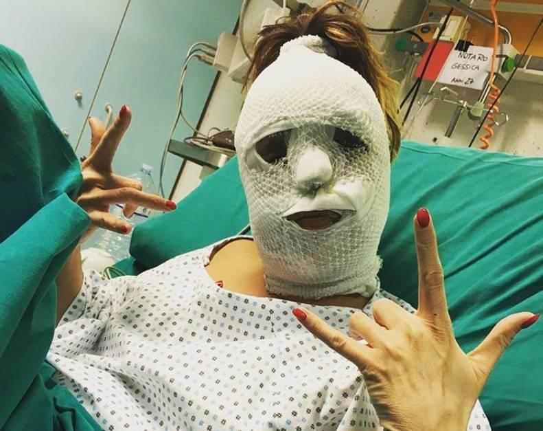 """Foto choc di Gessica Notaro dopo l'attacco con l'acido: """"Mi ha salvato la mia follia"""""""