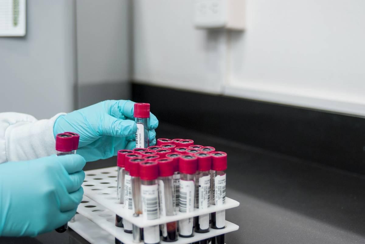 Nuovo test del sangue scopre 50 tipi di cancro