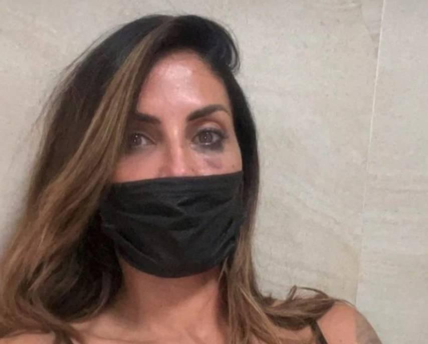 """Aggressione a Guendalina Tavassi: """"Frattura del naso e contusioni multiple"""""""