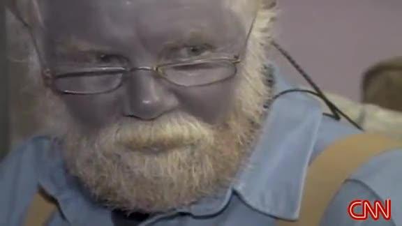 Paul Karason, l'uomo blu, è morto