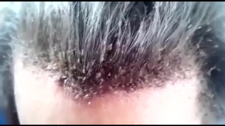 Migliaia di pidocchi sulla testa di un uomo
